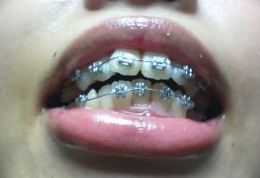 101119歯.jpg