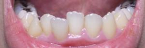 矯正前歯並び2.jpg
